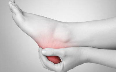 What is Sever's Disease?