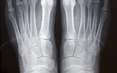 Ankle Injuries: Fracture or Sprain?