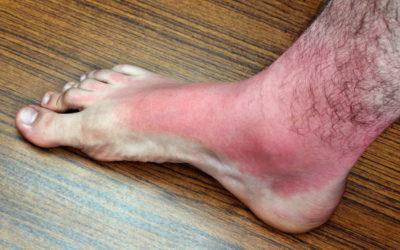 Foot Rash – Contact Dermatitis